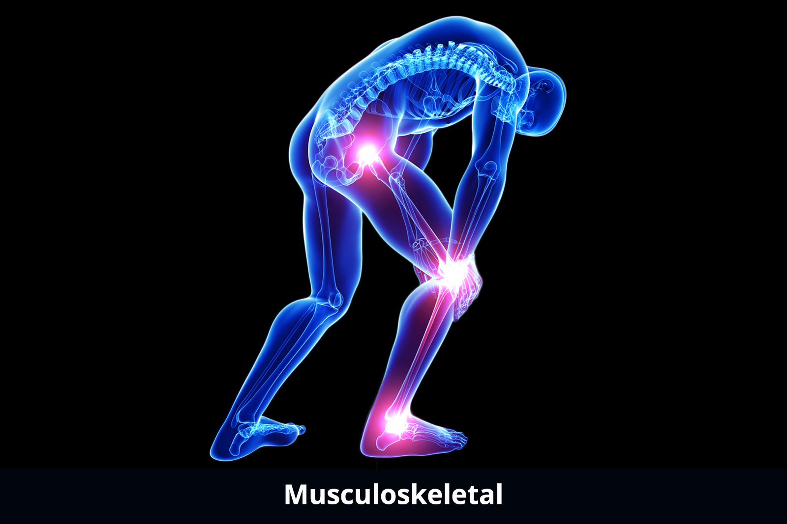 musculoskeletal-about