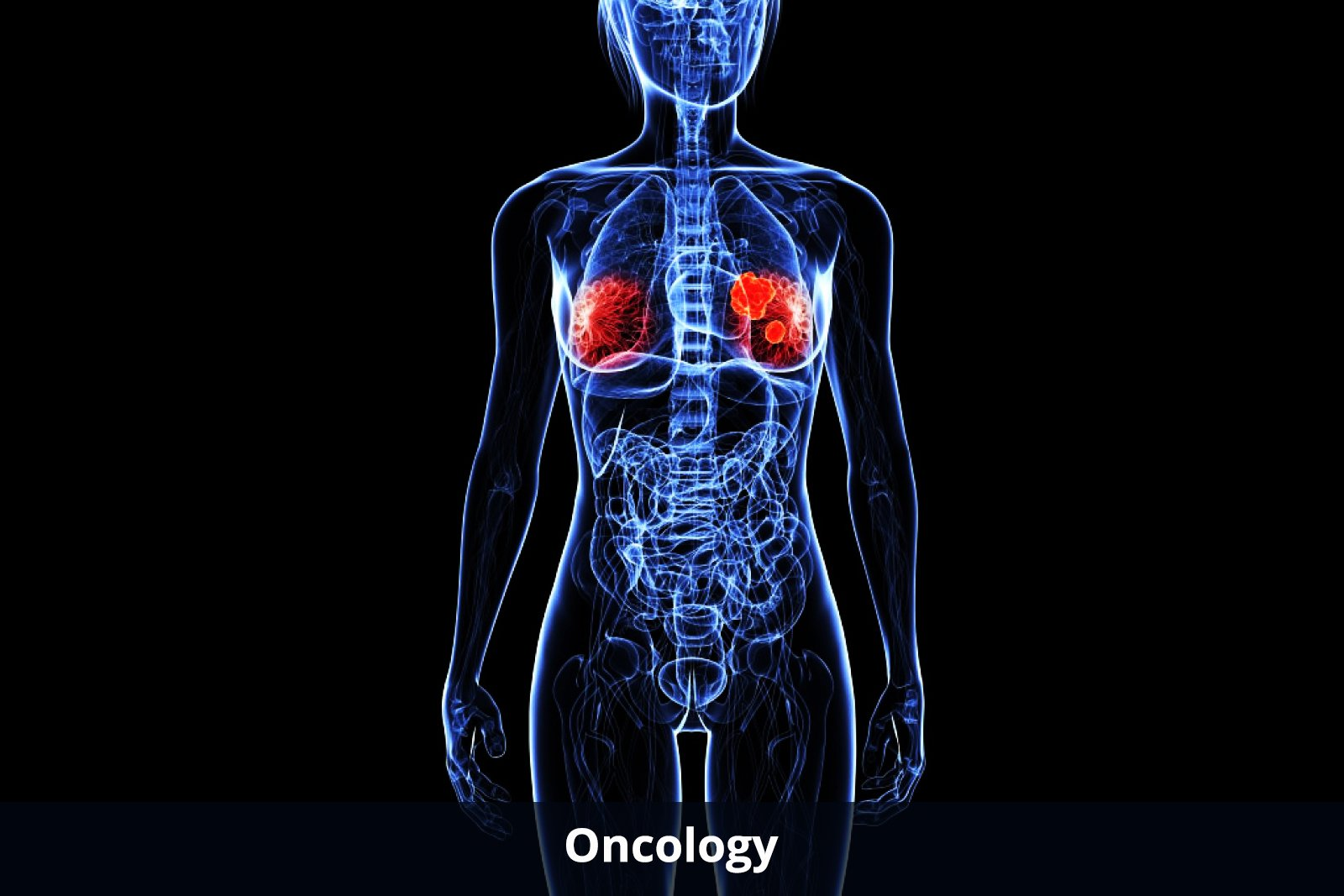 oncology-about