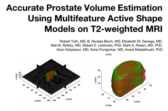accurate-prostate-volume-est